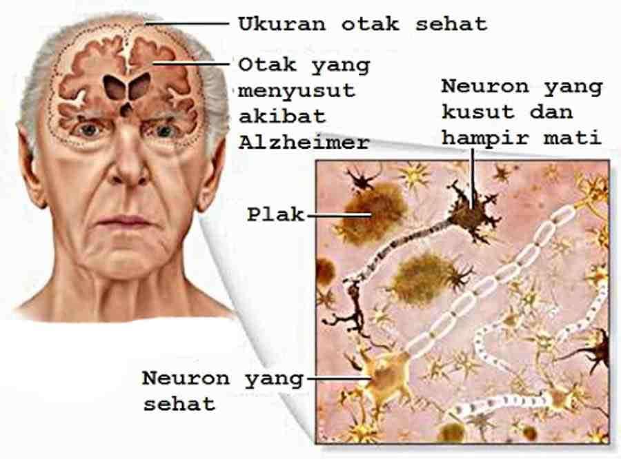 Apakah Itu Alzheimer